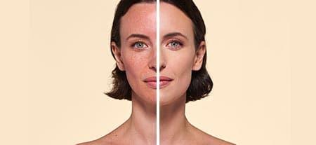 v_before_after-post-procedure.jpg